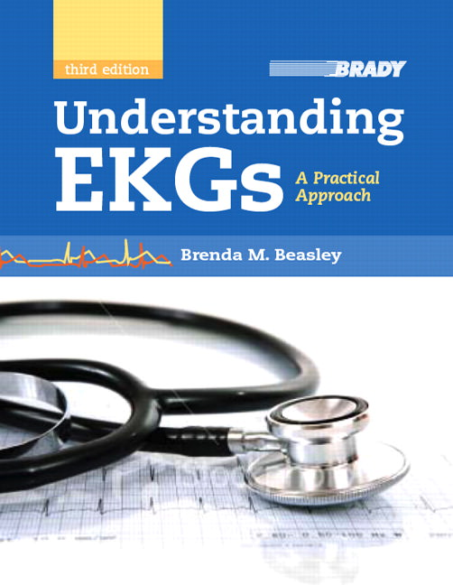 Understanding EKGs: A Practical Approach Guide